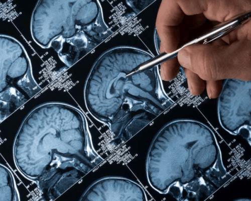 neuro image 1
